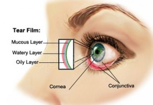 dry-eye-syndrome-1